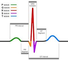 BASIC 12 LEAD ECG INTERPRETATION TIPS & TRICKS