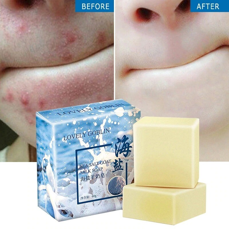 Acne Treatment Soap Sea Salt Goats Milk Moisturizing 100g Sydney