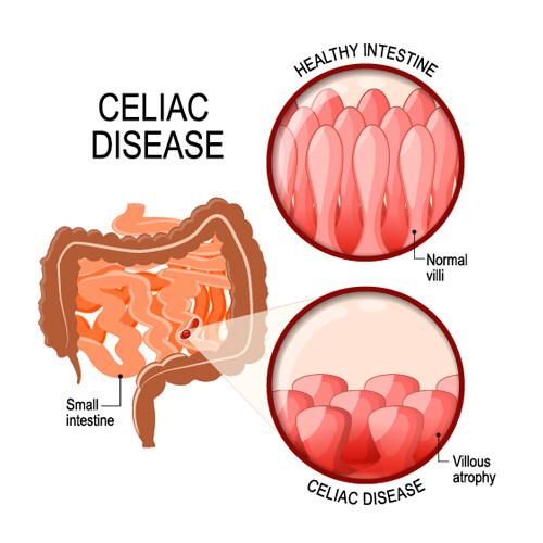 Comprehensive Celiac Disease Test