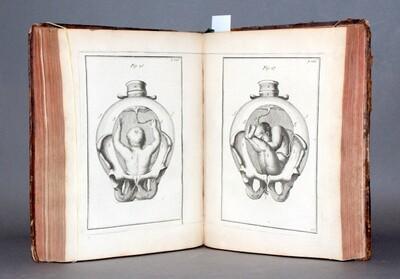 VAN DEVENTER.- Observations importantes sur le manuel des accouchements..., 1734. Édition ornée de 38 planches gravées.