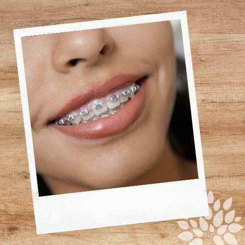 Cera ortodoncia