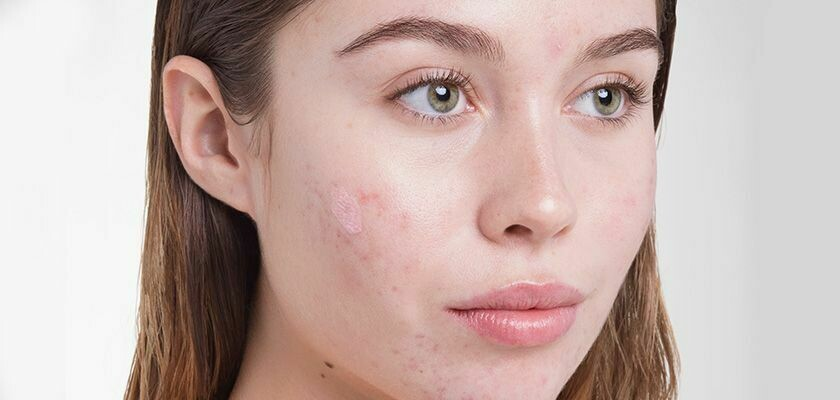 Acne Treatment (1 hour)