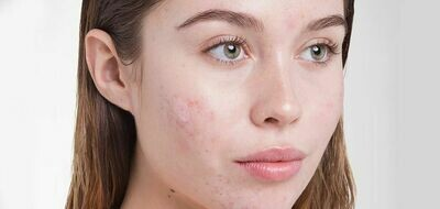 Acne Treatment (1 hour)