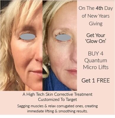 (d) Quantum Micro Lift facial X 4 or Multiples