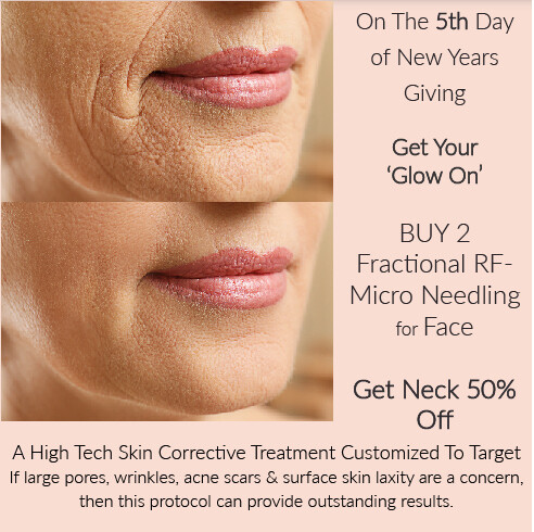 (e) Fractional Micro Needling RF Facial X 2 or Multiples Text us at 250 514-7032 if you want to SAVE $450 on neck