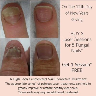 (l) Fungal Nail Treatment X 3 or Multiples