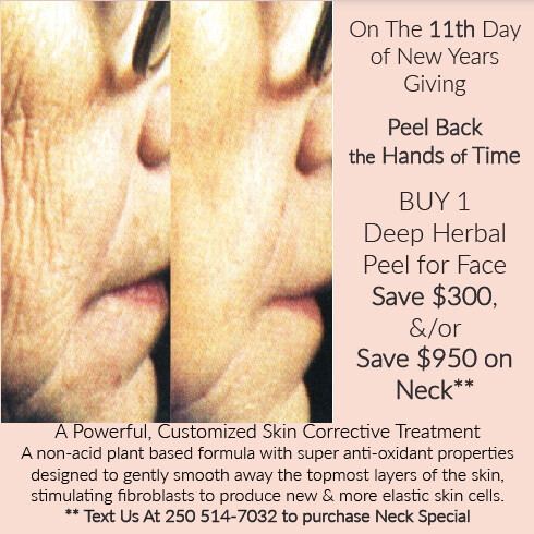 (k) Organic Deep Herbal Peel X 1 or Multiples Text us at 250 514-7032 if you want to SAVE $950 Off The Neck