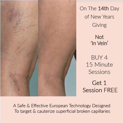 (n) Leg Veins Treatments X 4 or Multiples