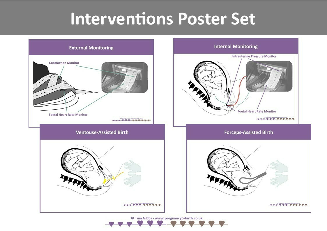Interventions Poster or poster Sets (A2)
