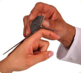 Vinkelmätare Goniometer för fingrar , 15 cm