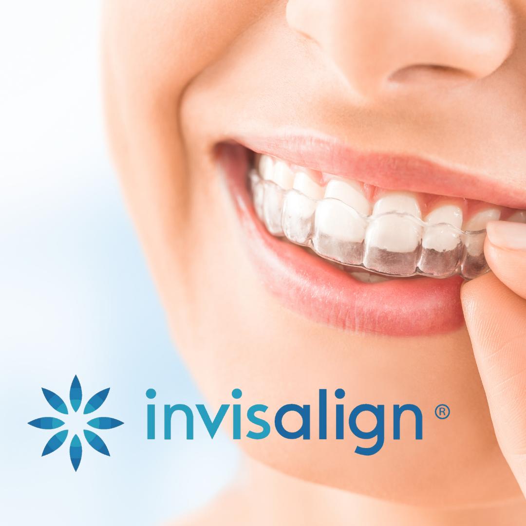 Custom Invisalign Treatment
