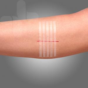 Wound Closure Strips 3mm * 75 mm * 5 strips pre card