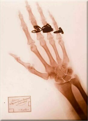 Hand X-Ray Magnet