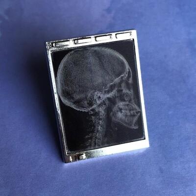 Lenticular Radiology Light Box Pin