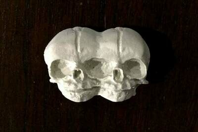 Conjoined Twins Skull Magnet