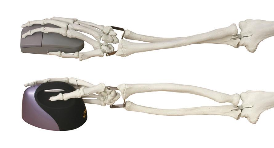 Mausbedienung ohne Verdrehung des Unterarms