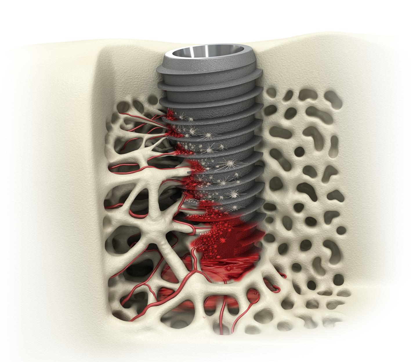 UFII Implant [Regular / Wide]