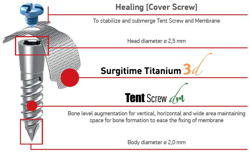 Tent Screw | Suruburi de mentinere
