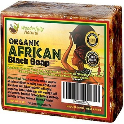 Treat Soap Organic - 5 lb Best for Acne Treatment, Eczema, Dry Skin, Psoriasis, Scars, Dermatitis, White Heads Pimples, Anti-fungal Face & Body Wash, Raw... Wonderfully Natural